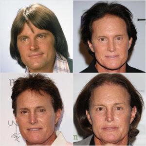 Bruce-Jenner-Transformation