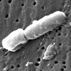Klebsiella pneumoniae. (Credit: CDC.)