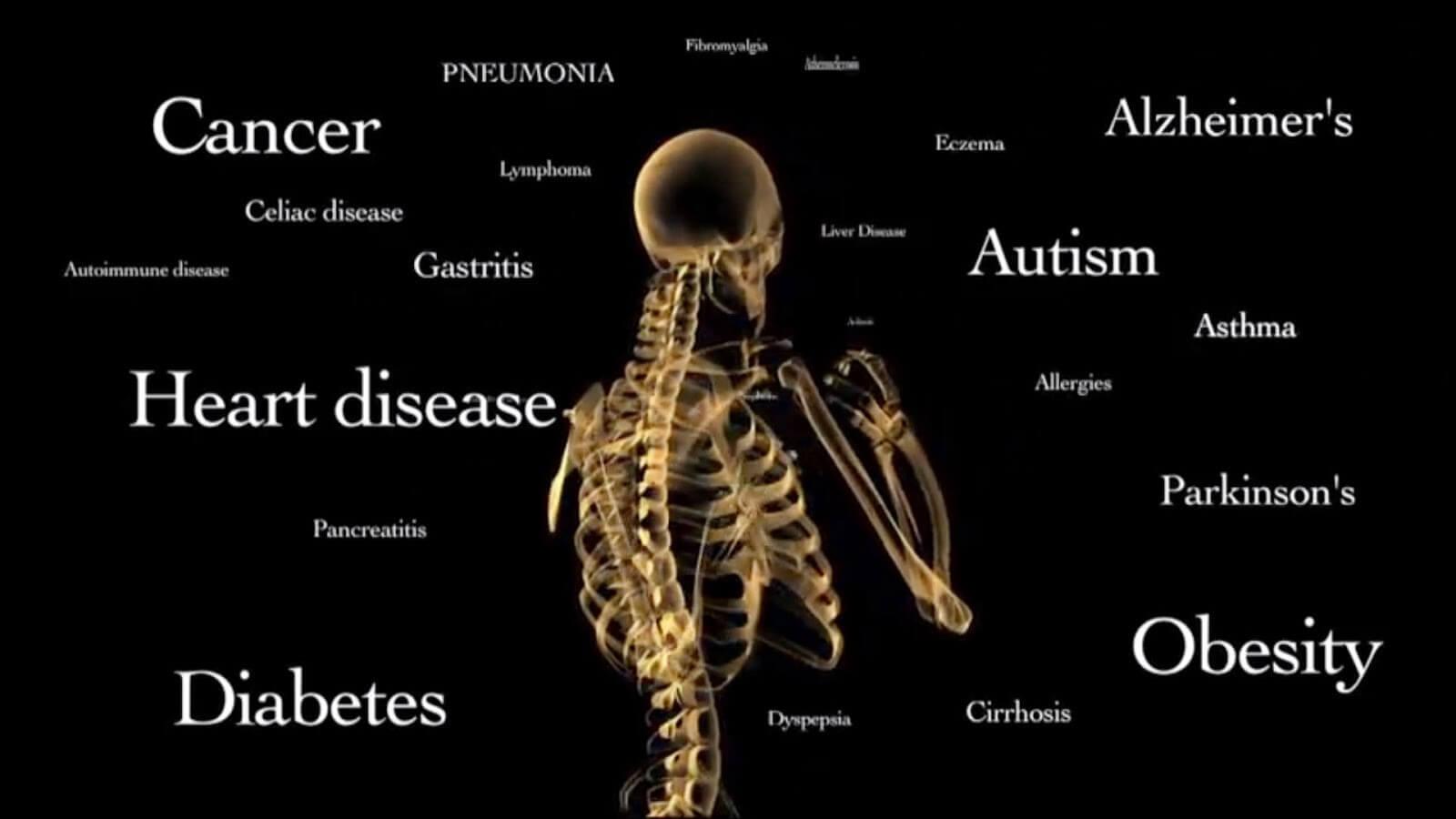 Slikovni rezultat za gmo diseases