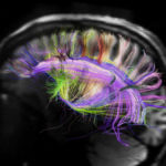 brain-scans-could-replace-the-sat-by-2032