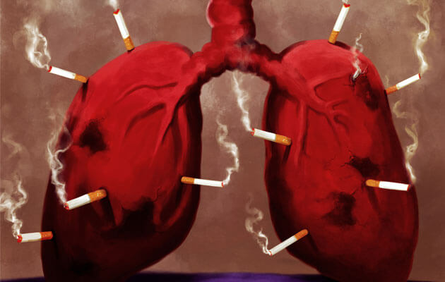 cigarette-smoking-is-the-main-cause-of-lung-cancer