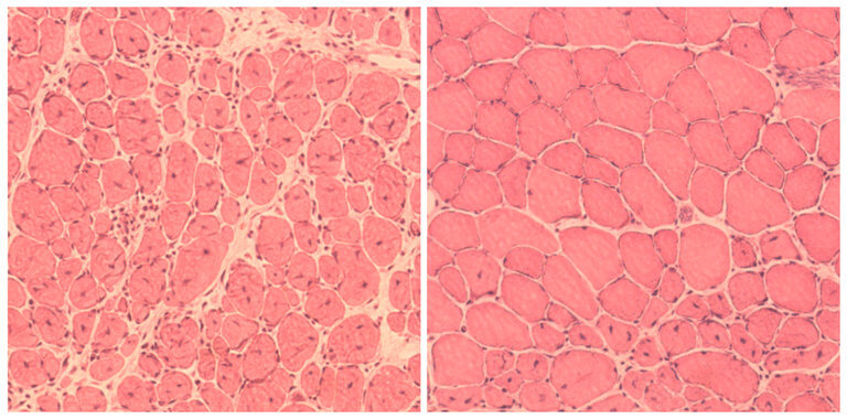 Impaired muscle repair in mice, left, compared with improved muscle regeneration seen after reprogramming. Credit: The Salk Institute for Biological Studies