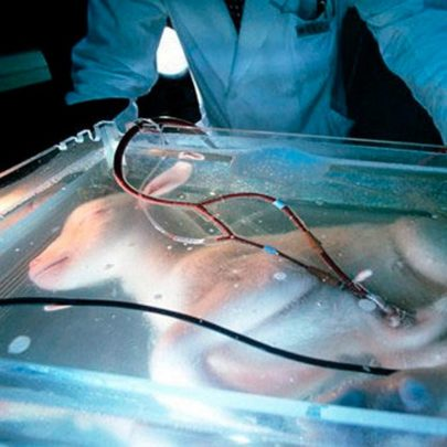 Artificial womb created to save premature babies